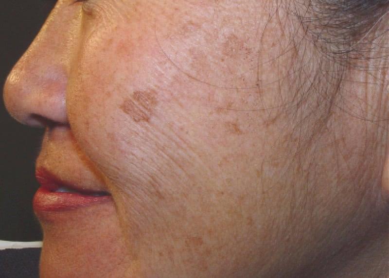 Чередую маски № 2 и № 3 каждый день. Пигментные пятна исчезли полностью, морщины не так заметны.