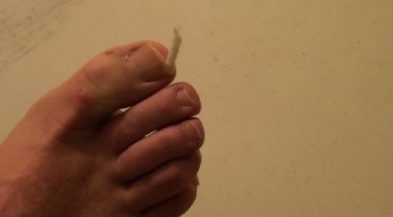 Дедушкин совет лечения вросшего ногтя. Избавься от этой проблемы раз и навсегда!