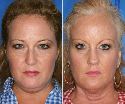 Фотографии близнецов, один из которых курил! Результат налицо.