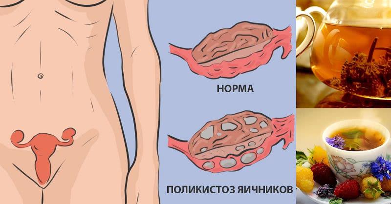 Натуральное средство для лечения поликистоза яичников: никаких гормонов.