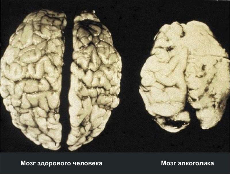 Профессор Жданов: «Человек, который выпил, на следующее утро мочится собственным мозгом».