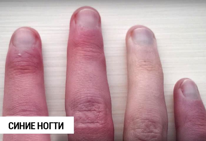 Узнай, какие тайны могут скрывать твои ногти!