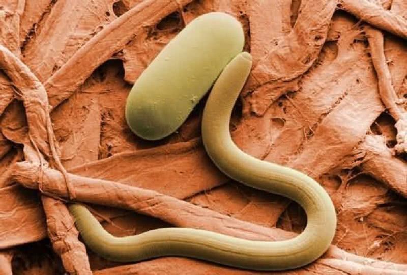 Врачи-паразитологи бьют тревогу! 95 % населения заражены паразитами…